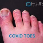 foot with COVI toe rash and swelling
